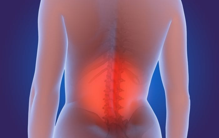 Back Pain Specialist Summerville SC