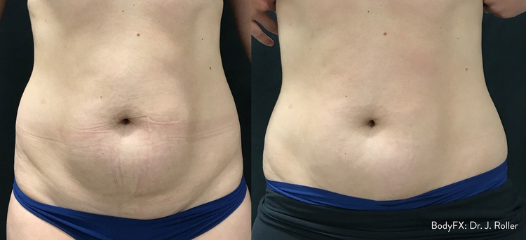 non-invasive lipo charleston sc